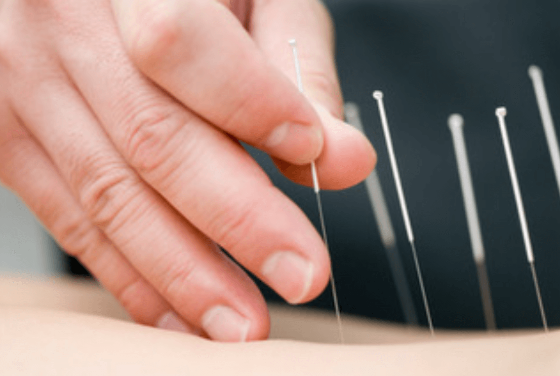 agopuntura nuove terapie dinamica bicocca milano